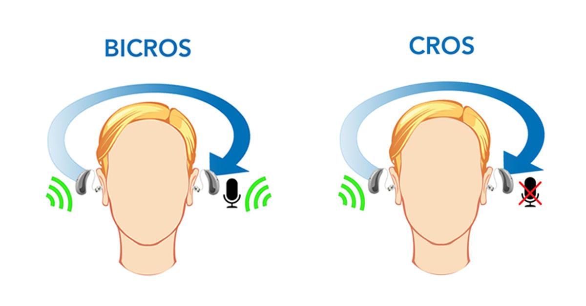 Que es el sistema de audífonos cros-bicros audiotek 2